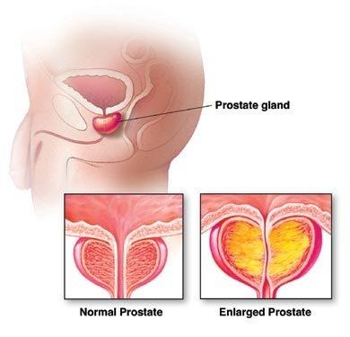 cancer de vezica urinara la barbati tratament recenzii condiloame